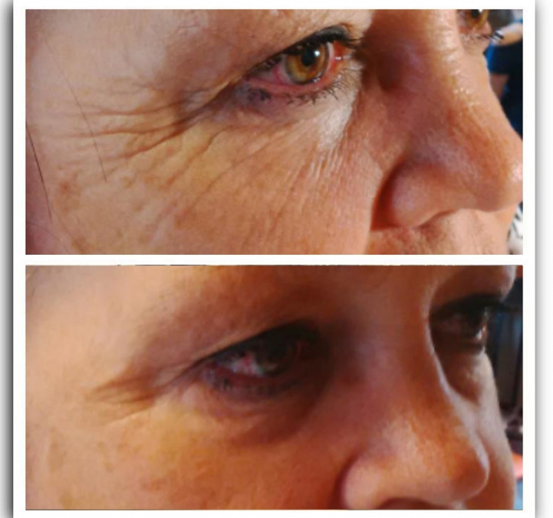 Anti ageless result