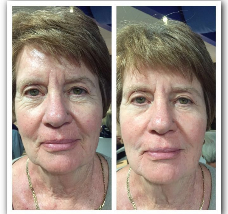 Results of Anti Ageles